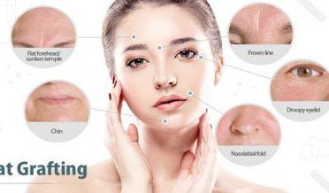 چہرے کے گڑھے اور جھریاں بھرنے کا آسان طریقہ